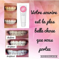 Teeth whitening / blanchissage dentaire  Dollard-des-Ormeaux, H9B