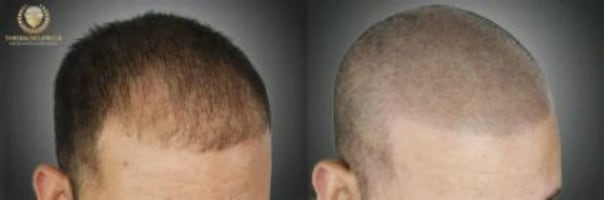 Hair Transplant Tattoo SMP