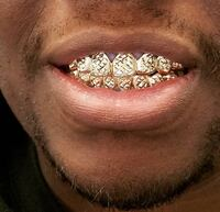 Gold Teeth, Grillz, Jewelry, Click More Info!!!  Miami Gardens, 33169