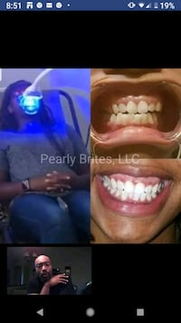 Teeth Whitening Sessions Available! Hyattsville
