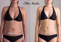 Body slimming  Vancouver