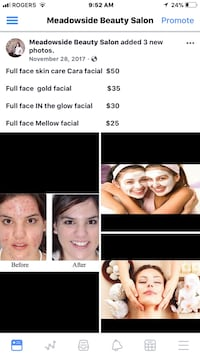full face skin care collage with text overlay screenshot Edmonton, T6T 1N6