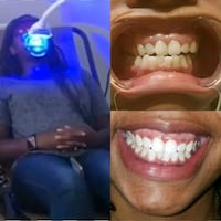 Teeth Whitening Appointments Available Chillum