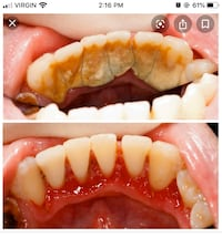 Dental cleaning Mississauga, L5G 4S1