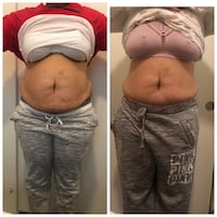weight loss/ body contouring Silver Spring