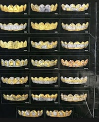 10k gold grillz Halifax