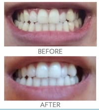 AP24 whitening toothpaste fluoride-free 埃德蒙顿, T5Y 3C8