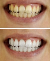 Whitening Toothpast Bowling Green, 42104