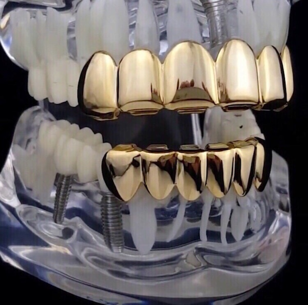 Custom gold grill teeth grillz top and bottom