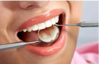 Affordable dental cleaning Toronto