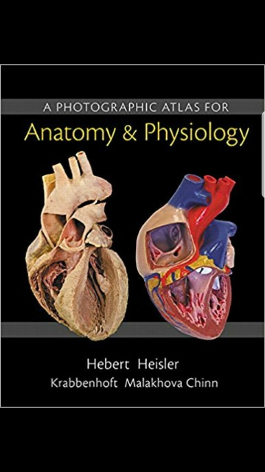 Used A Photographic Atlas for Anatomy & Physiology book by Heisler ...