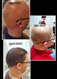 hair growth Vancouver