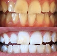 teeth whitening Glen Burnie