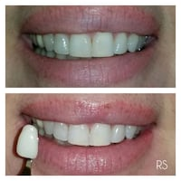 LED Teeth Whitening Calgary