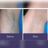 Laser hair removal  Toronto, M9R 3T1