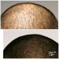 Scalp Micropigmentation  Los Angeles, 91436