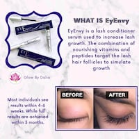 Eyelash growth serum Vaughan
