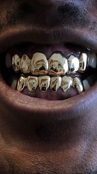 10K GOLD GRILLZ 6ON6 Toronto, M1K 1N8