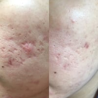 acne scar treatment Vancouver