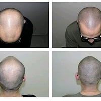 Scalp Hair Micro Pigmentation tattoos Burnaby