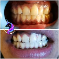 Teeth Whitening Calgary
