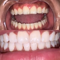 teeth whitening Glen Burnie, 21060