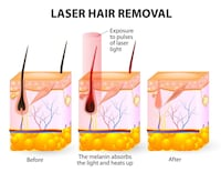 permanent laser hair removal  535 km