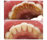 FREE PROFESSIONAL DENTAL CLEANING TORONTO