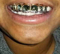 Real gold and silver made to order grills Davenport