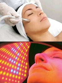 Micrrodermabrasion Facial plus LED Light Therapy Milton