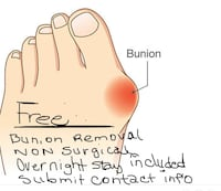 Bunion Removal Dale City