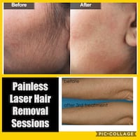 PAINLESS laser Hair Removal Sessions null