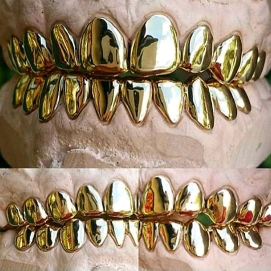 10k solid gold CUSTOM made gold Grills .....