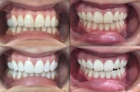 Teeth Whitening Take Home Pen Vaughan