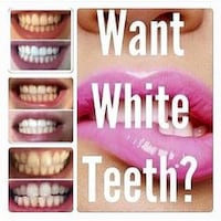 Teeth Whitening Holiday Special for You Fort Lauderdale
