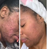 Skin care products that work Ajax, L1T 4A9