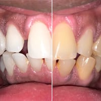 Salon Teeth Whitening  Montréal