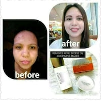 Hi I am selling effective Cream for pimples