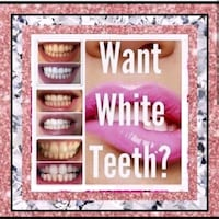 Instant results, 1 Hour, Teeth Whitening session  Calgary, T3E 1S9