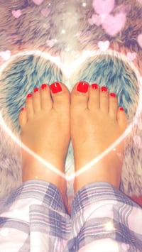 Colour change hand and feet Vaughan